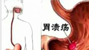 抽烟有害健康 过量会加重胃溃疡
