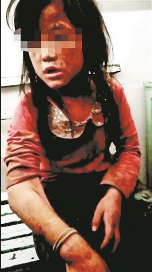 大化一名十岁女童遭父亲施暴 被绑在摩托车拖行近百米