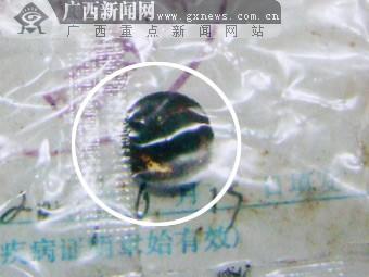 大胆人体艺术摄影下体阴部_3岁幼女被摧残下体藏异物 取出后竟是生锈电池