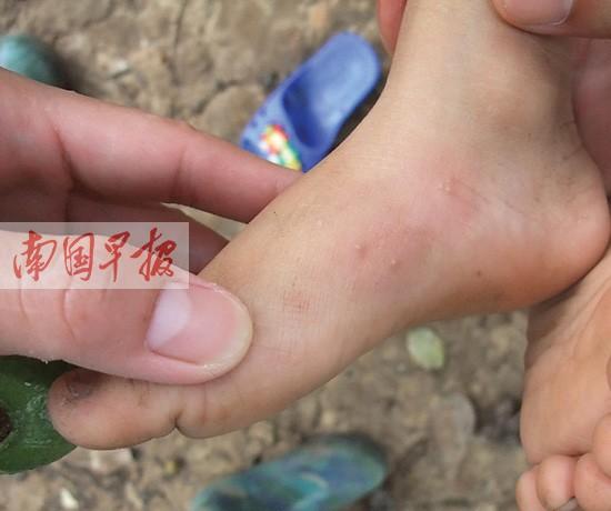 红火蚁入侵一家数人被蜇 被红火蚁蜇伤怎么办(图)