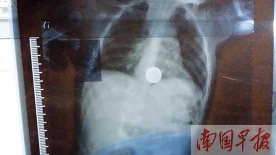 """【南国早报】两岁男童吞食一元硬币被送医 异物不取或成""""炸弹"""""""