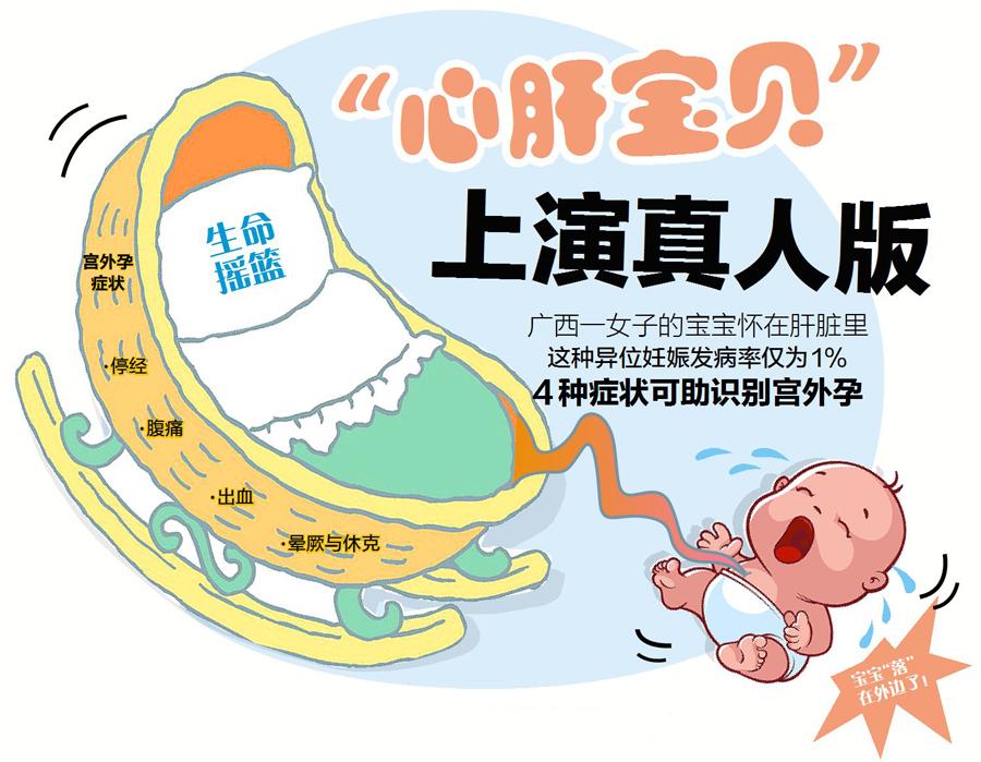3月27日焦点图:广西一女子竟把宝宝怀在肝脏里