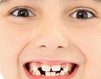 """莫把""""六龄牙""""当乳牙 完全萌出后及早做窝沟封闭"""