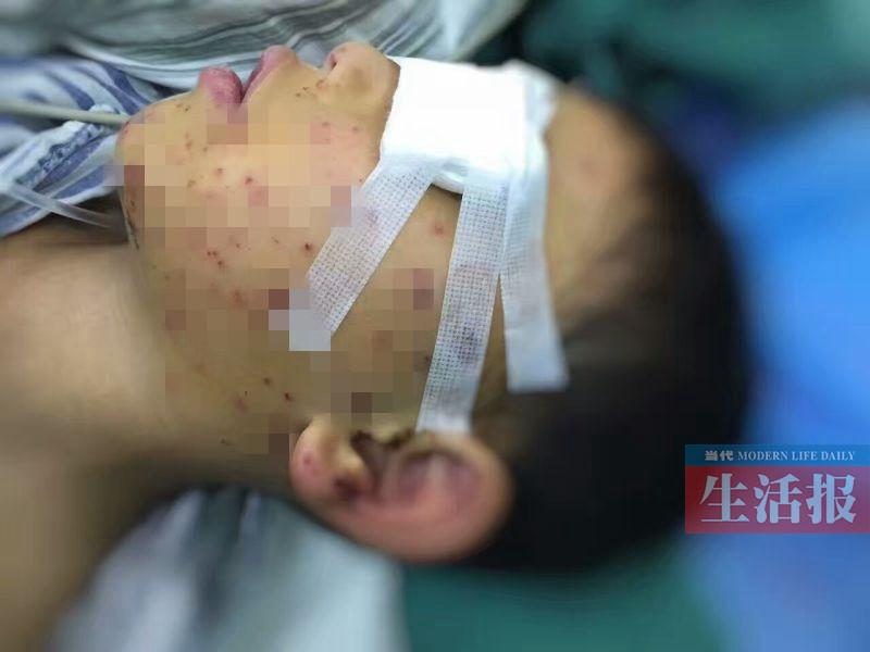 6岁男童玻璃瓶里燃放鞭炮 脸被炸花眼睛险被炸瞎