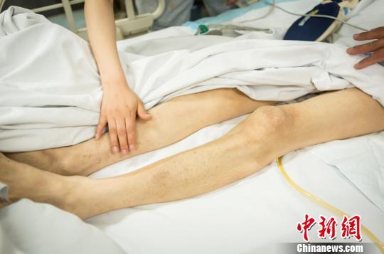 目前李向城治伤已经花费了10多万元,其主治医生介绍,目前老人恢复得还不错,但还需继续用药。 范丽芳 摄