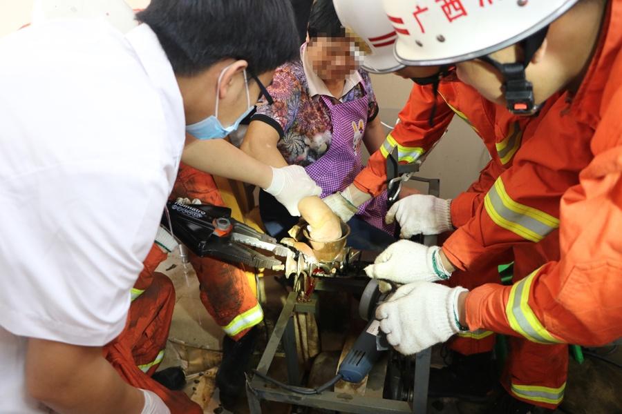 惊险!女子右手被绞肉机卡住 消防紧急破拆(图)