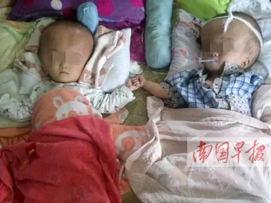 玉林一对双胞胎患脑积水生命垂危 上万网友伸援手