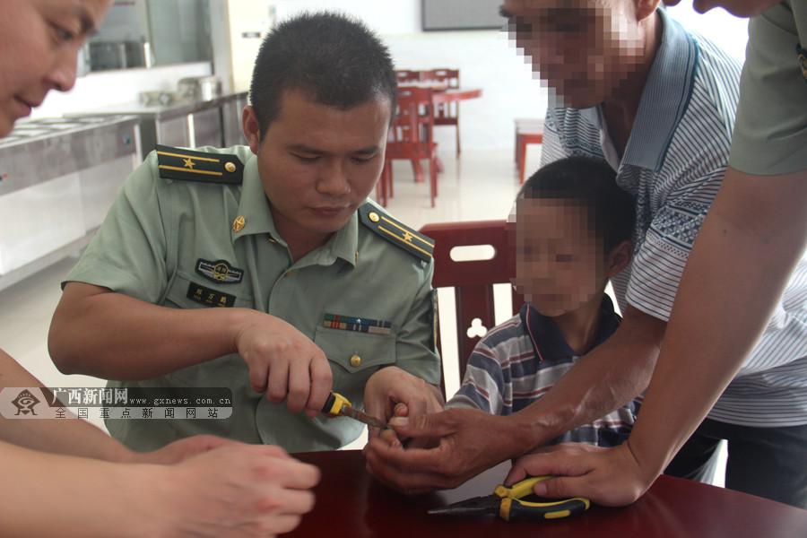男孩被螺丝垫片卡手6天 手指肿胀充血终获救(图)