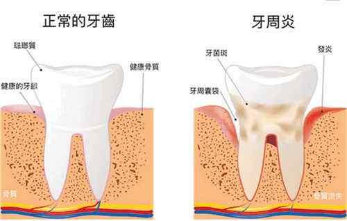 教你如何尽早发现牙周病
