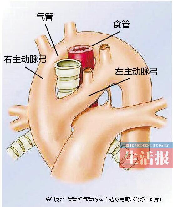 """3个月男婴患心脏主动脉""""分叉"""" 发病率极其罕见"""