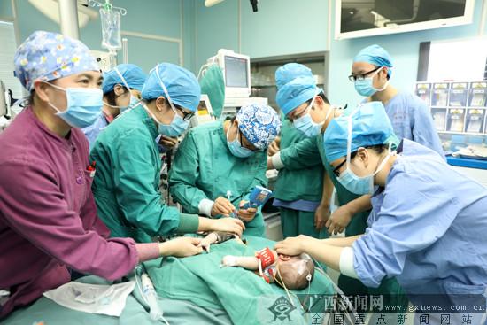 """解""""分身""""危机 广西成功实施第二例连体婴分离术"""