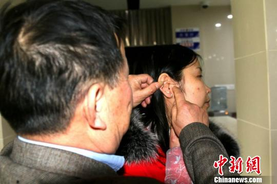 李先生查看女儿耳旁的特殊印记。伍公宣