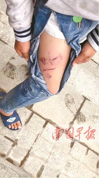 桂林:大狗没拴狗绳 公园里连伤4人(图)