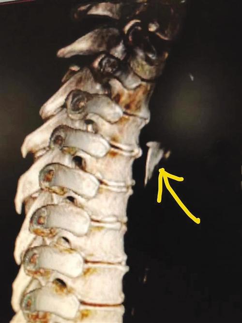 男子吞鱼骨被刺破胸腔 医生:异物卡喉勿强行吞饭(图)