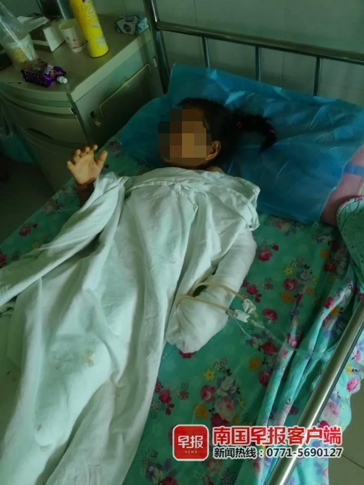 心痛!�斓降暮谇蛲蝗槐�炸 10�q女孩手掌被炸��