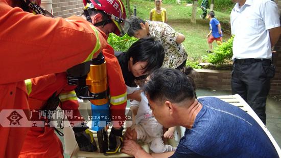 幼儿玩健身器械时被卡 桂平消防员扩张解救(图)