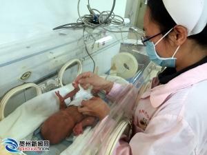 贺州早产女婴不足2斤 救治过程一波三折