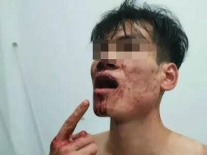 南宁一男子称因占用车位被暴打 打人者自称是局长