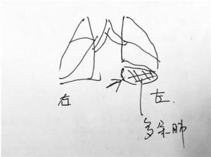 杭州7岁男孩长3个肺 专家£º会影响正常呼吸