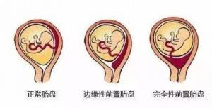 """""""熊貓血""""孕婦遇上兇險性前置胎盤 醫生緊急救治"""